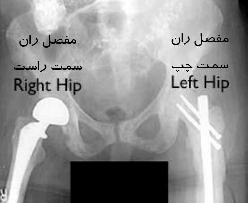 متاستاز استخوانی پایین تر از استخوان ران (سابتروکانتریک)