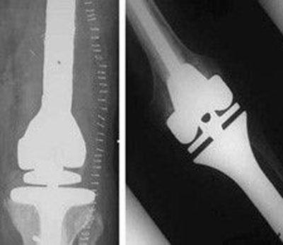 آرتروپلاستی برای درمان سارکوم استخوانی