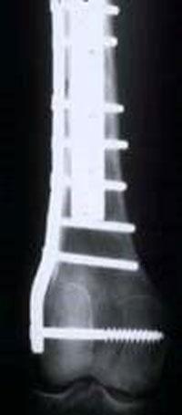 عکس رادیولوژی سارکوم استخوان