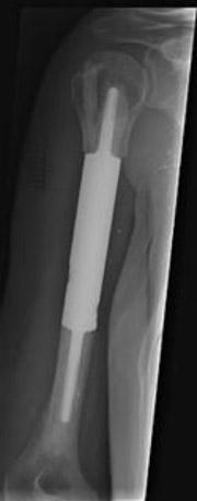 فضاساز مقطعی که جانشین بخشی از استخوان هومروس