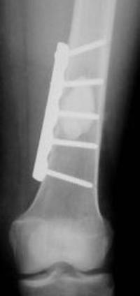 متاستاز استخوانی انتهای پایینی استخوان ران (سوپراکوندیلار)