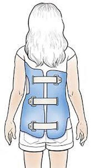 بریس زیر بغلی برای درمان اسکولیوز