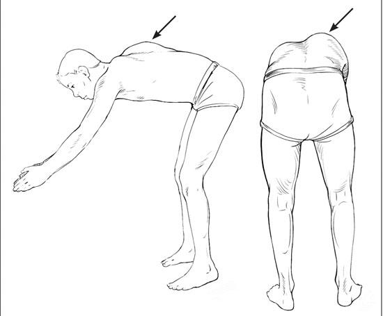 درمان اسکولیوز