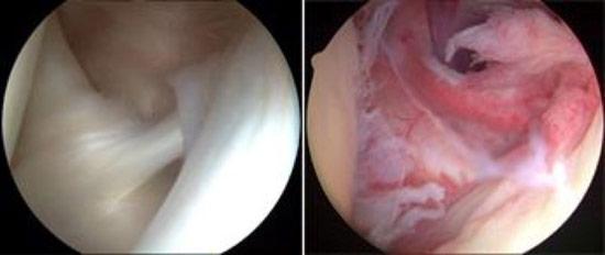 جراحی آرتروسکوپی شانه