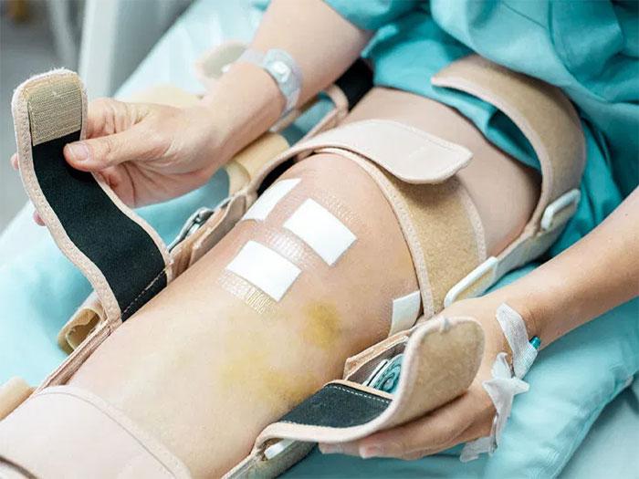 دوره نقاهت پس از جراحی تعویض مفصل زانو