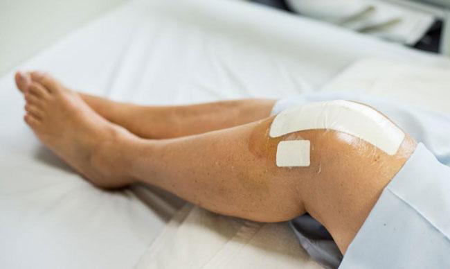 مراحل بهبودی بعد از جراحی تعویض مفصل زانو