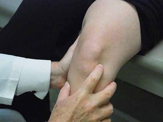 معاینه پزشک برای تشخیص پارگی مینیسک زانو