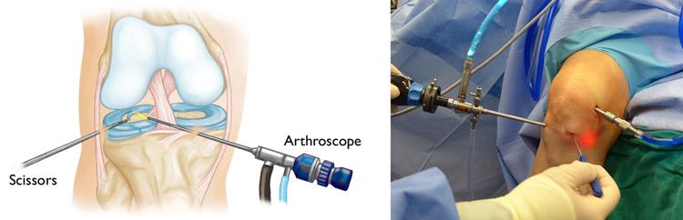 آرتروسکوپی برای درمان پارگی مینیسک زانو