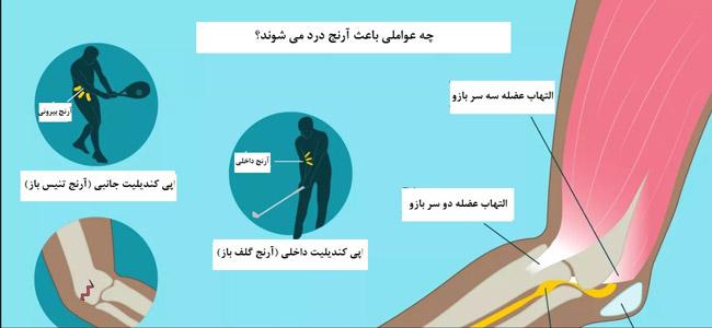 علل درد آرنج