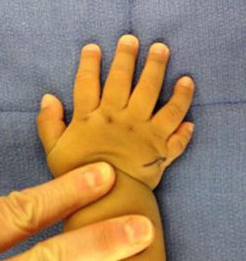 پلی داکتیلی (انگشت اضافی)
