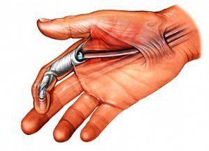 آسیب های تاندون فلکسور یا خم کننده انگشتان دست