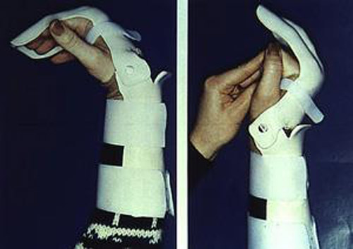 جراحی آسیب های تاندون فلکسور