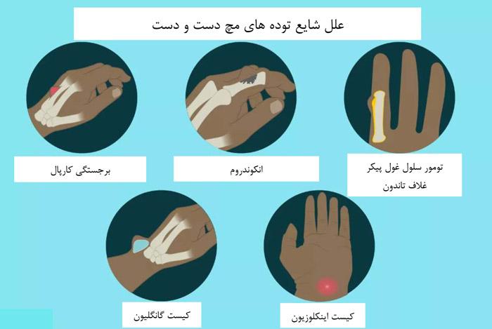 توده های رایج بر روی دست یا مچ دست