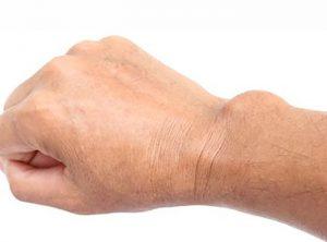 توده ها و برجستگی های روی دست و مچ دست