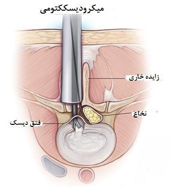 میکرودیسککتومی برای درمان درد سیاتیک