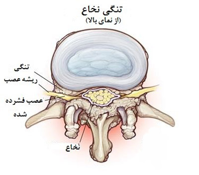 تنگی کانال نخاعی علت درد سیاتیک