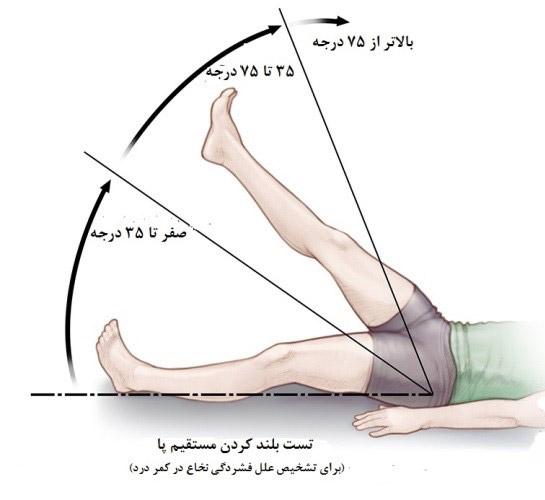 نحوه تشخیص درد سیاتیک