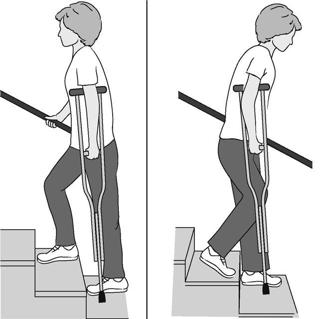 ورزش های بعد از تعویض مفصل لگن