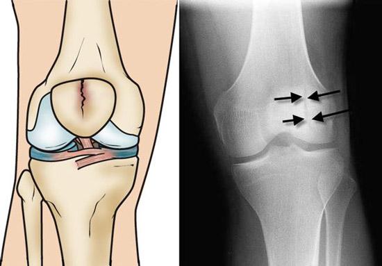 انواع شکستگی های کشکک زانو