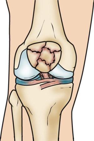 شکستگی خرد شده کشکک زانو