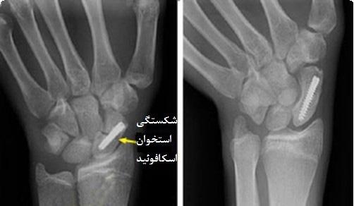 شکستگی استخوان اسکافوئید مچ دست