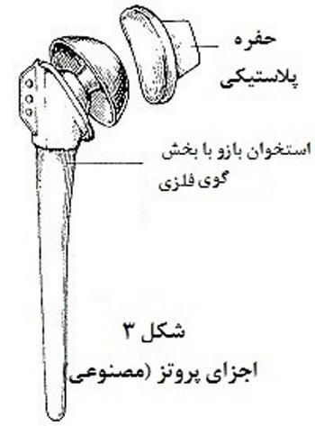 تعویض مفصل شانه